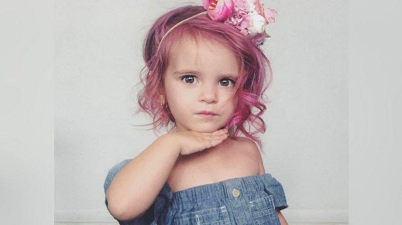 rambut rontok anak karena bahan kimia