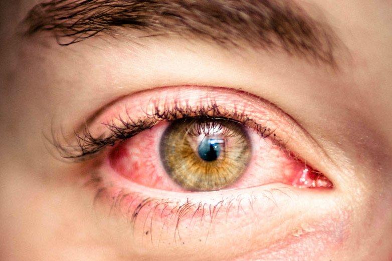 red-eyes.jpg