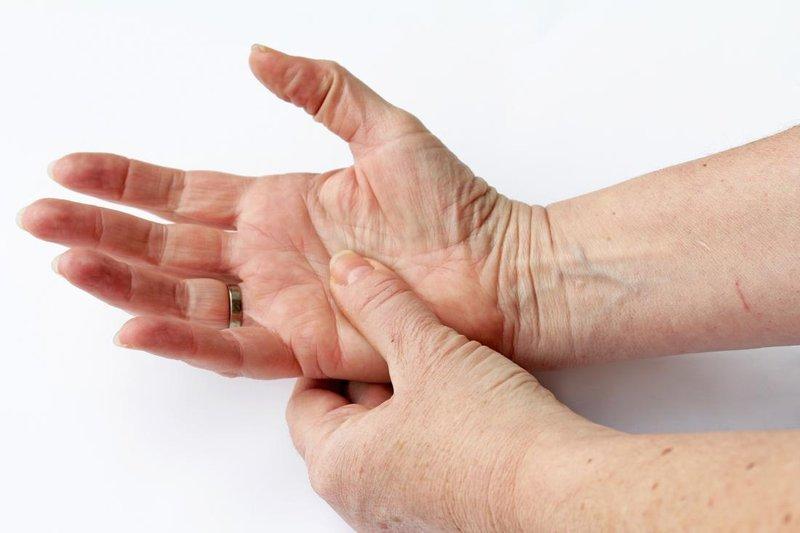 rheumatoid arthritis-1.jpg