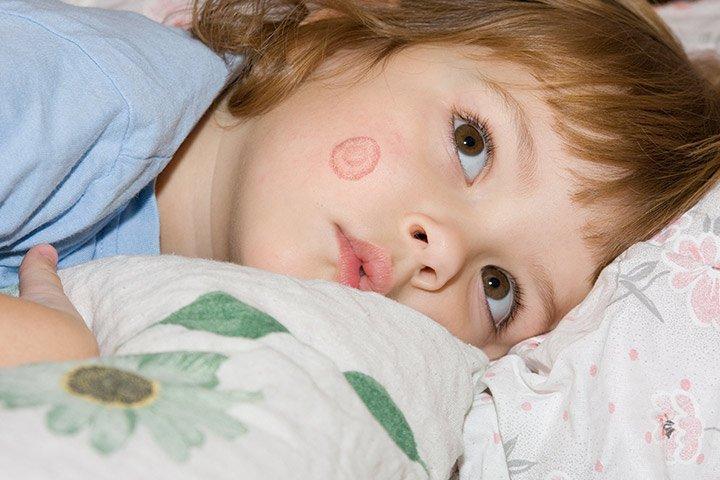 X Penyakit Kulit Bayi Akibat Jamur
