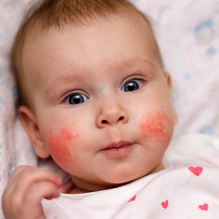 risiko mengidap lupus saat hamil 6.jpg