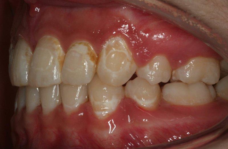 sakit gigi - enamel berubah warna.jpg