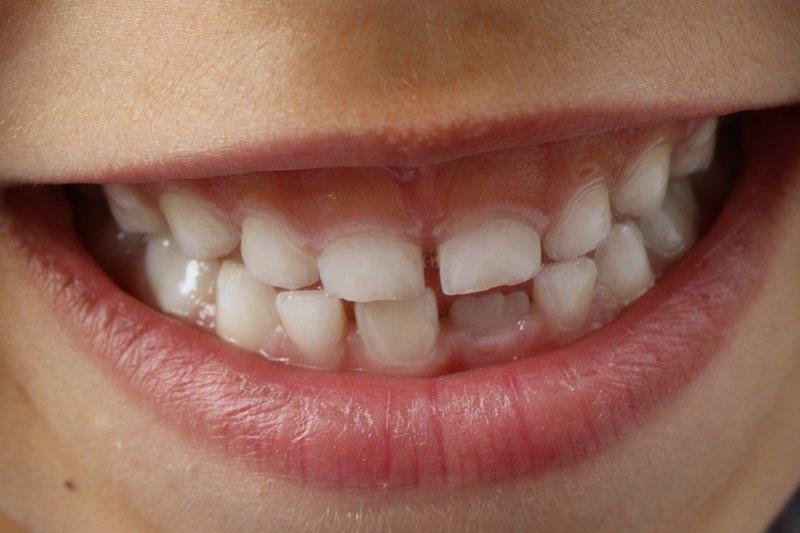 abses gigi pada ibu hamil, abses gigi