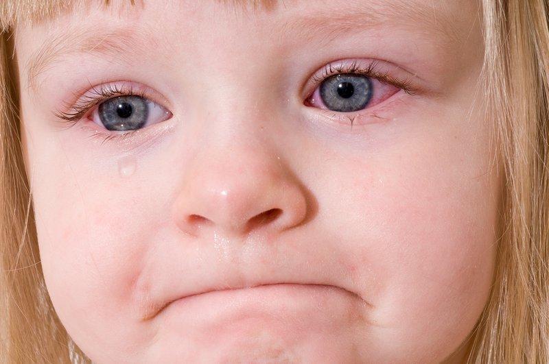 sakit mata berdarah