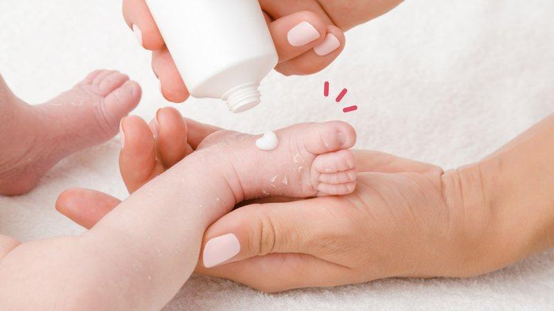 3 Pilihan Salep untuk Mengatasi Bintik Merah pada Bayi