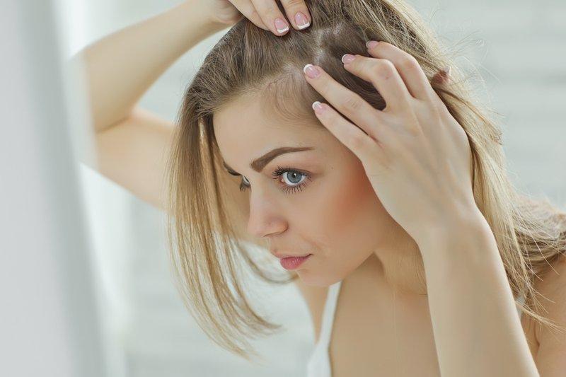 randa awal kerontokan rambut