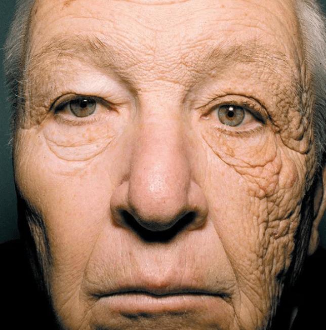 seorang supir truk dengan bagian wajah yang terpapar sinar matahari.webp