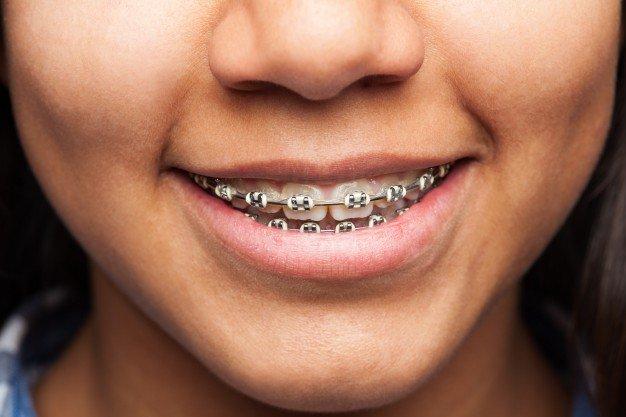 Mencegah gigi gingsul