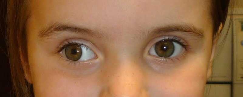 strabismus2.jpg