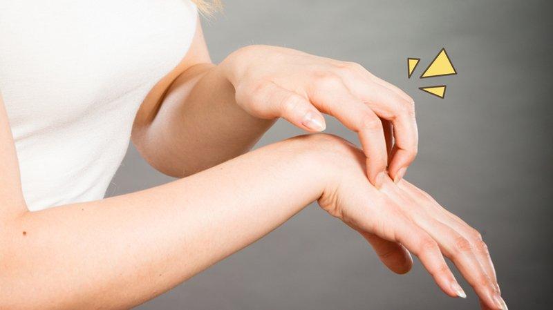 rekomendasi salep gatal untuk alergi.jpg