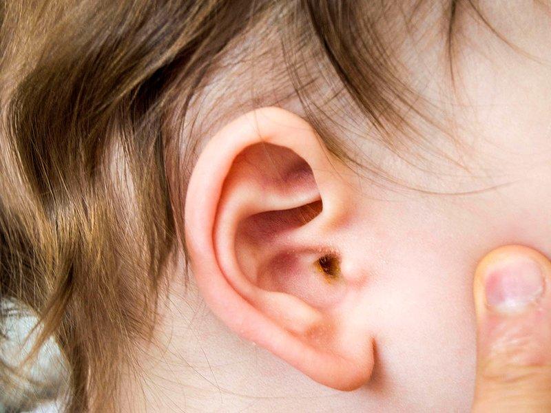 telinga bayi bau.jpg
