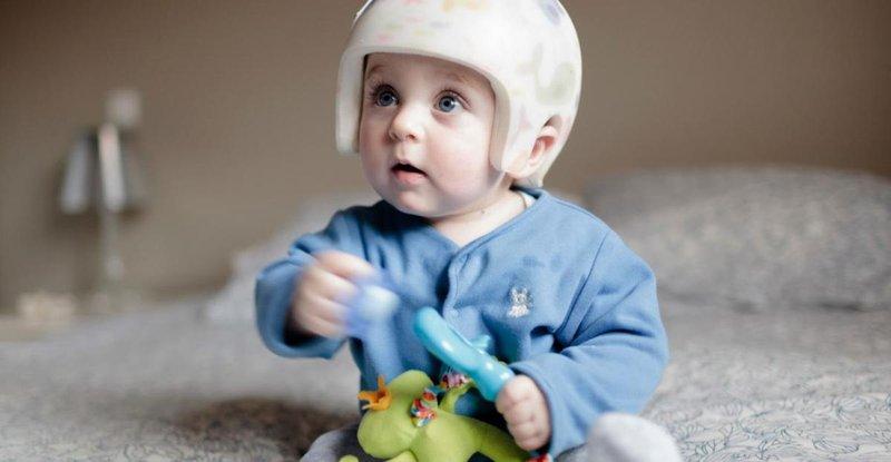 terapi kepala bayi peyang