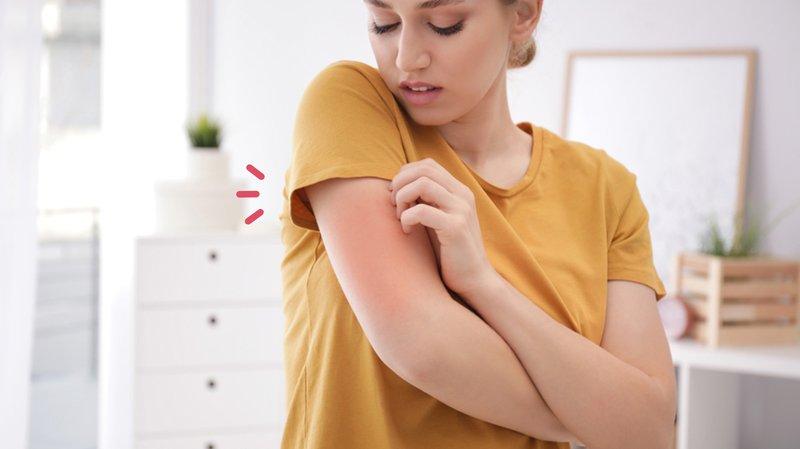 antihistamin untuk atasi alergi