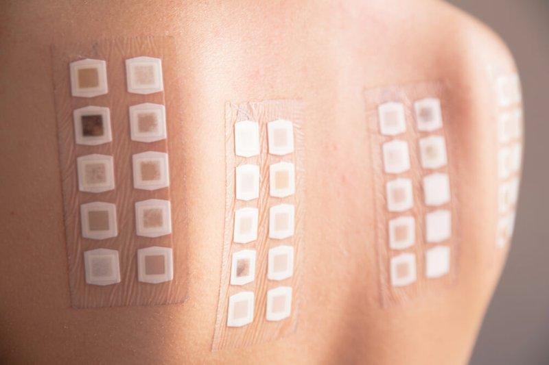 tes alergi kulit - thehealthy.com.jpg