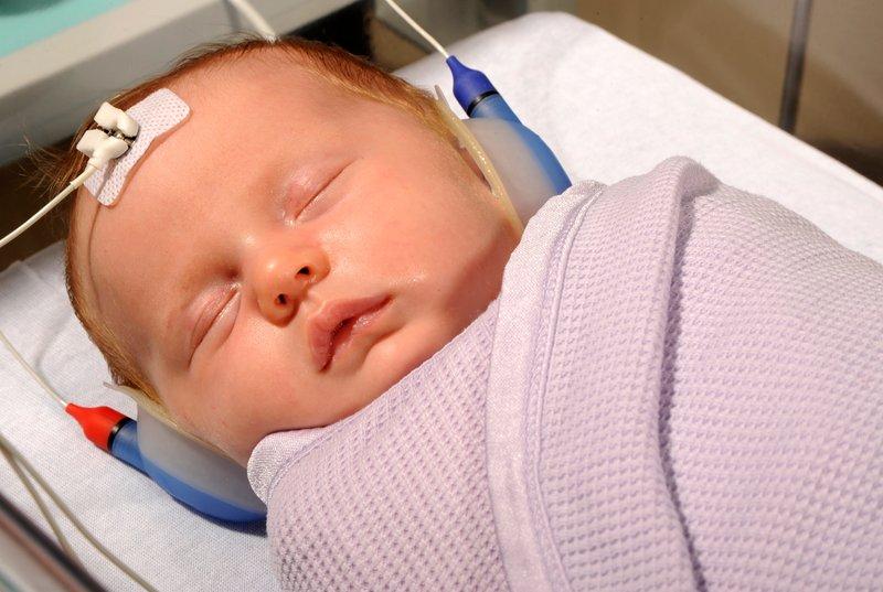 tes skrining bayi baru lahir-3
