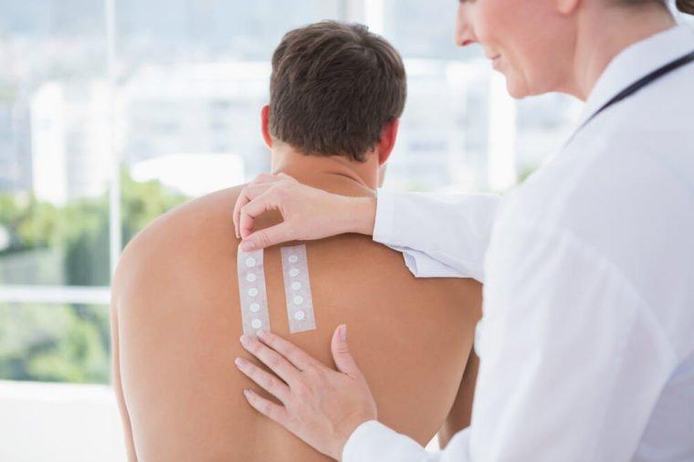 test alergi kulit.jpg