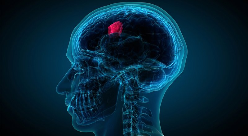 tumor otak.jpg
