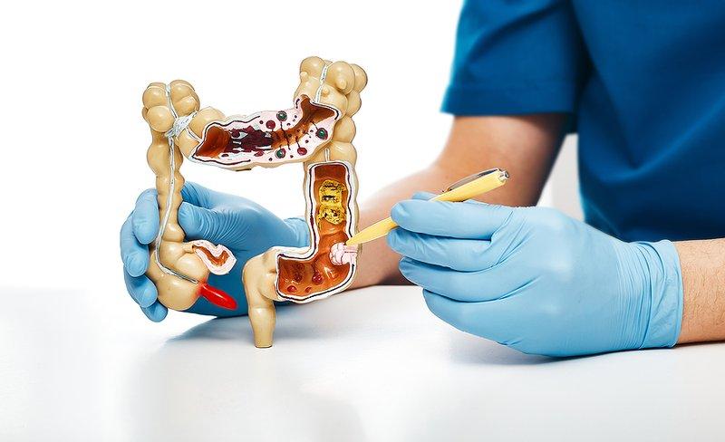 usus besar 1.jpg