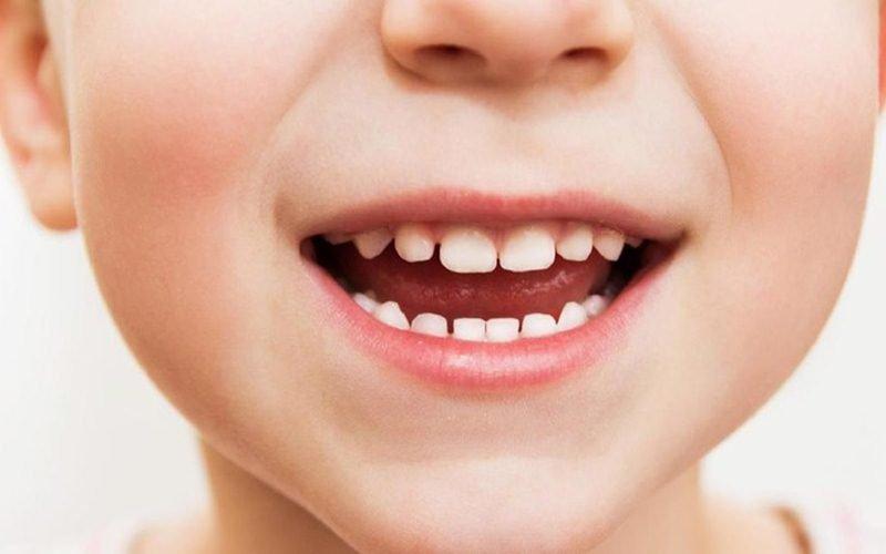 veneer gigi pada anak 2