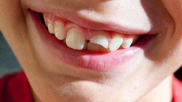 veneer gigi pada anak 3