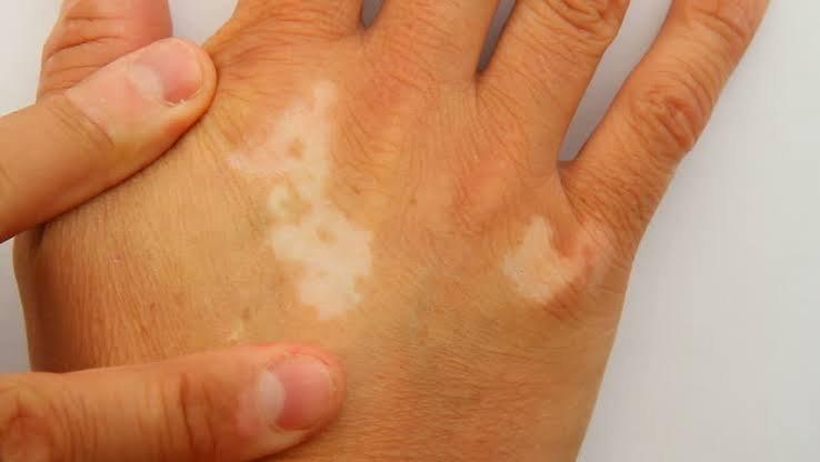 vitiligo (1).jpeg