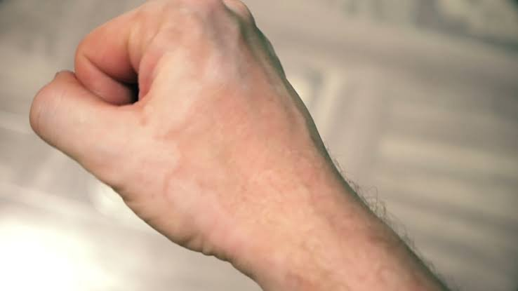 vitiligo (2).jpeg