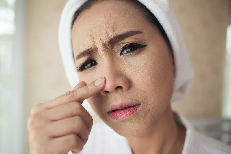 Baby oil membantu membersihkan wajah dari komedo