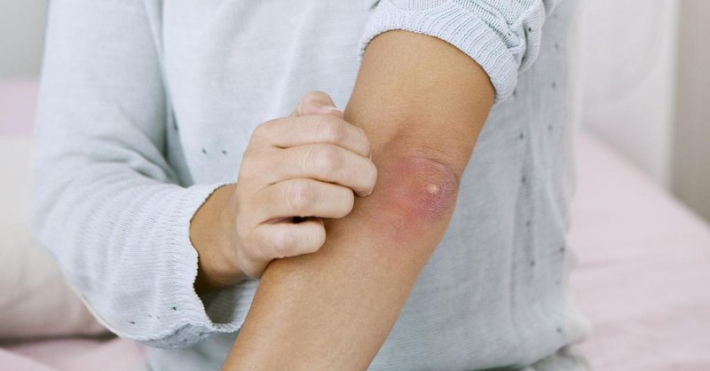 woman elbow pimple 1200x628 facebook